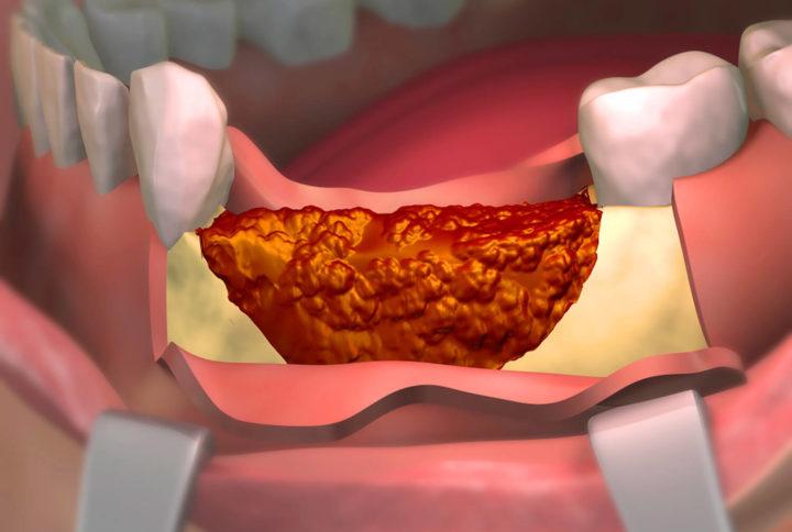 Diş Eti Hastalıklarında PRP ve PRF Tedavisi